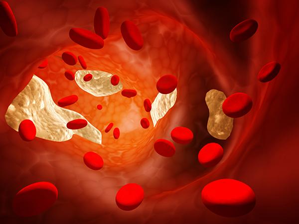 Чем опасен холестерин? (рис. 6)
