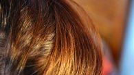 Укрепление корней волос (рис. 2)